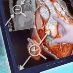 Сенсорный экран для медицины от Toshiba