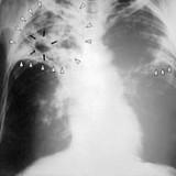 Диагностики туберкулеза — реальность!
