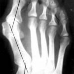 Щадящая технология исправление деформации первого пальца стопы