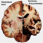 Новая технология поможет определить болезнь Альцгеймера