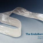 Рукав-имплантант избавит от тучности