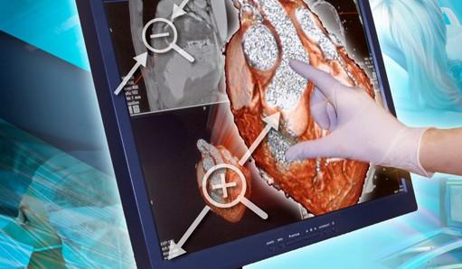 Новый тип сенсорного экрана